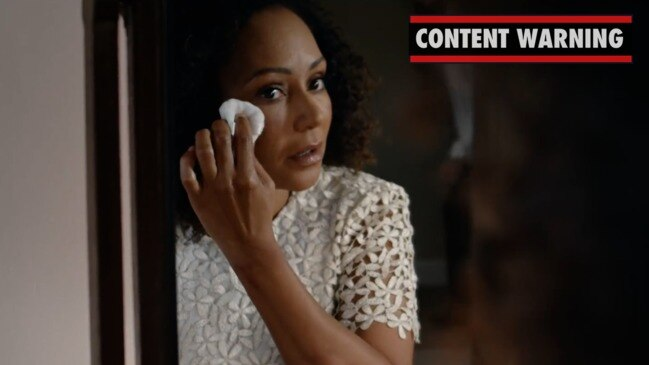Beaten and bruised Mel B appears in shocking domestic violence video to highlight abuse.