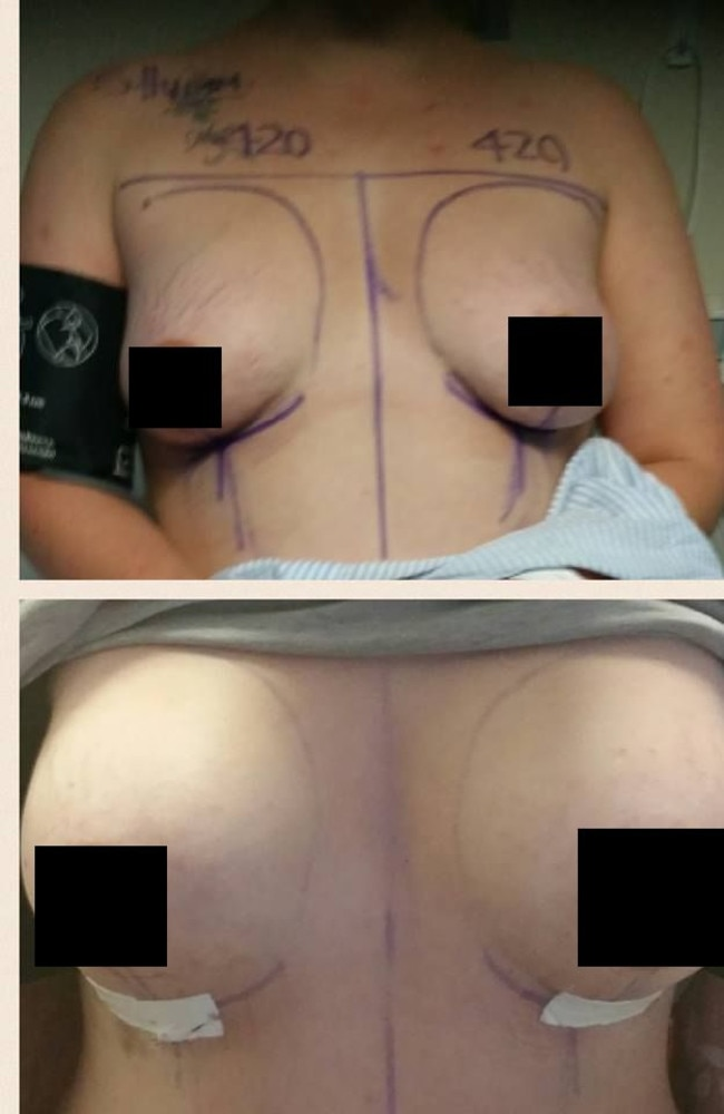 Top: Before the surgery. Bottom: One week post-surgery.