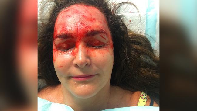 Kate Langbroek's vampire facial