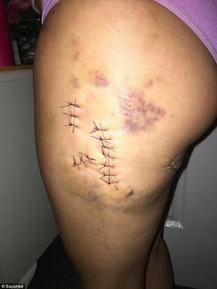Angela posted photos of the scars she bears from the attack.