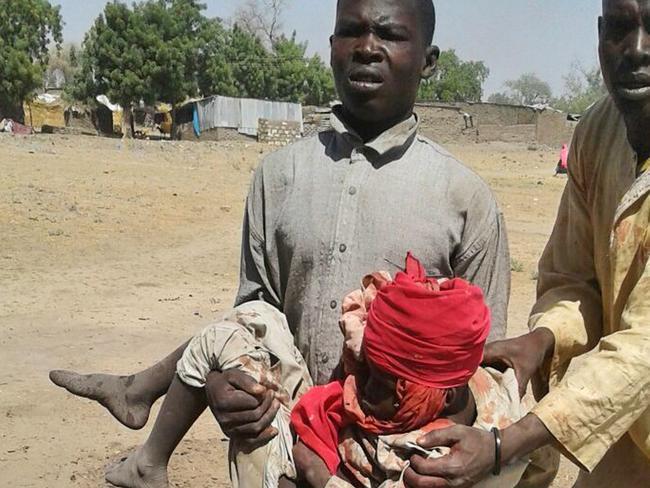 A man carries an injured child following the military air strike. Pic: MSF via AP