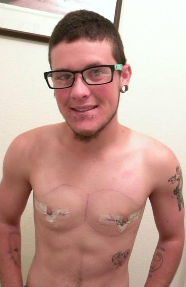 Wyley pictured after surgery in 2013 to remove his breasts. Picture: Caters News