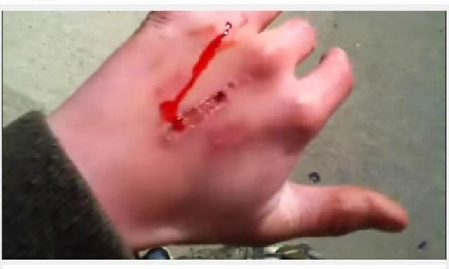 New sick online stunt: 'The Eraser Challenge'