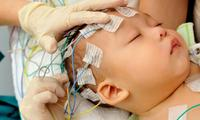 Apparently this test could diagnose autism in babies