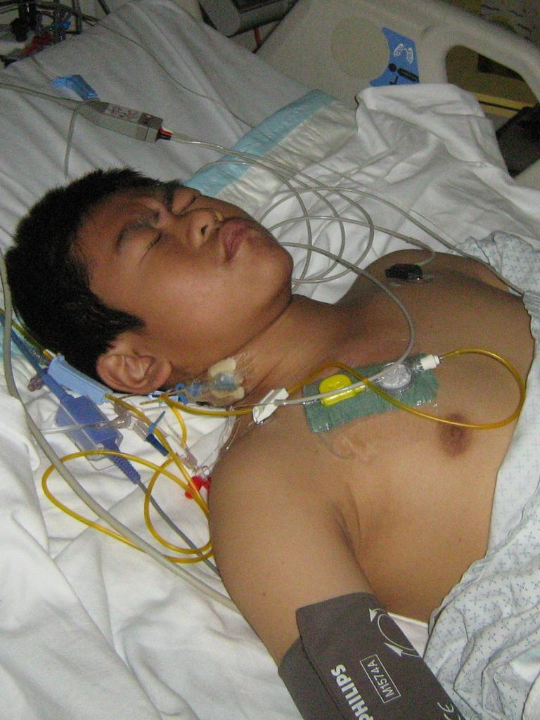 Being sick was the only life Andrew knew until he had the transplant.