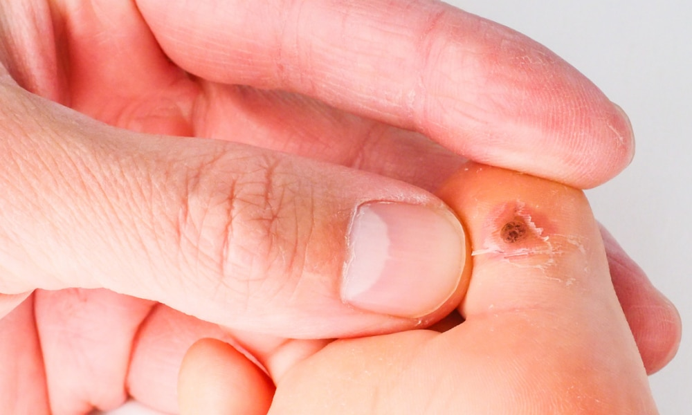 Best home remedies for curing warts - Kidspot