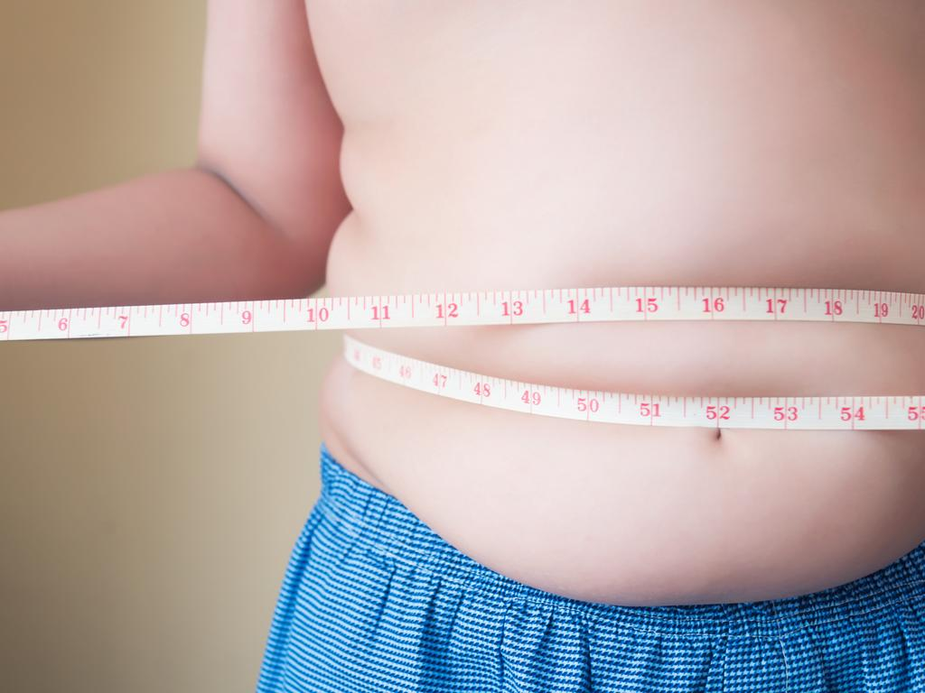 A study has found children who receive weight loss surgery have long-term positive health outcomes. Picture: Getty
