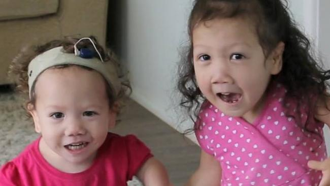 Briella and Maddy both have diastrophic dysplasia.