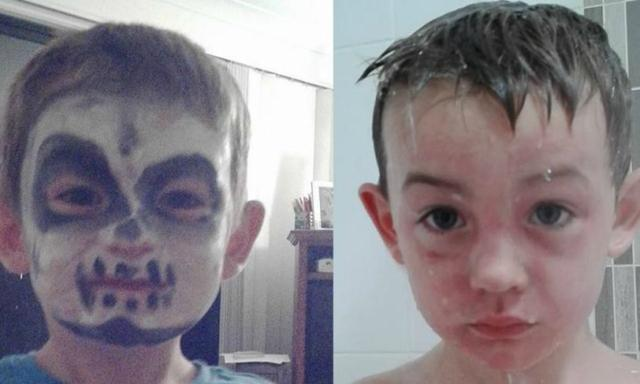 Mum claims Halloween makeup kit from Woolworths 'severely burnt' son's skin