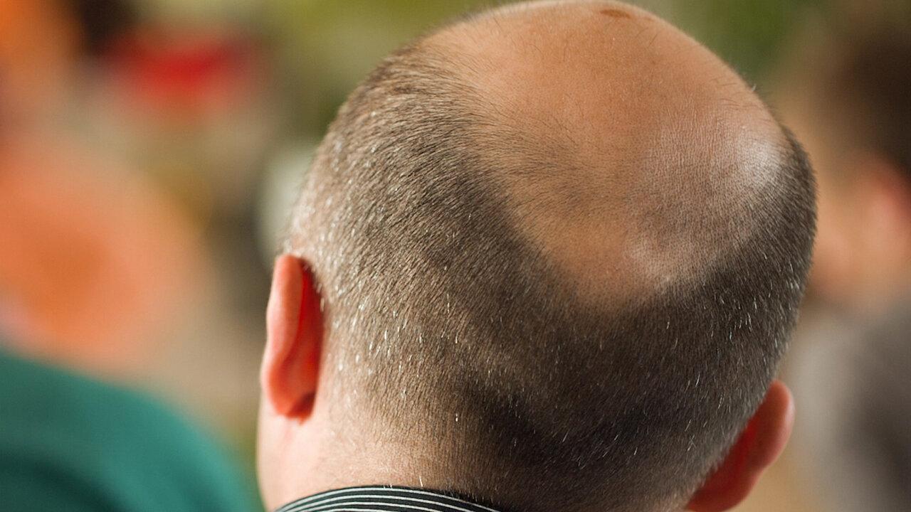 How Balding Became Big Business