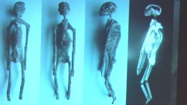 Supplied  Three-fingered mummies found in Peru are not human, scientists say