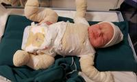 Parents told baby will live a short bedridden life