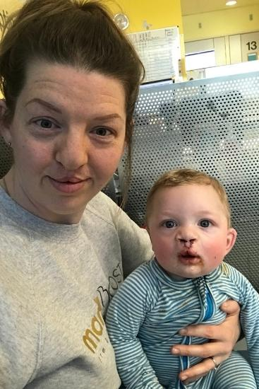Will has had two major surgeries before he was one. Source: Katabella Roberts/Jam Press/Australscope