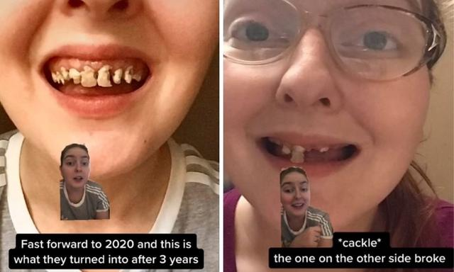 Mum has decayed teeth removed and replaced with dentures