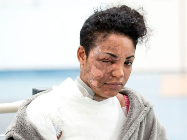 UK woman Tysha Stapleton says the NutriBullet exploded in her face. Picture: The Sun