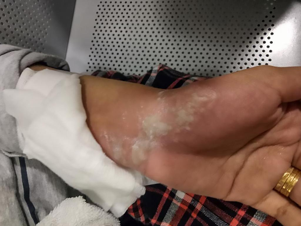 Nur Filzah Abdul Rahman shared photos of her injuries on social media following the terrifying incident. Picture: AsiaWire/australscope