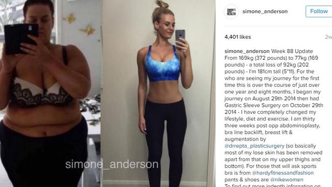 Simone Anderson documented her weight loss with a series of selfies on Instagram.