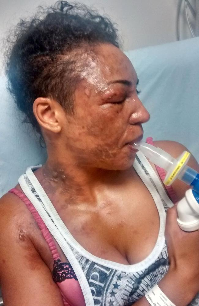 Tysha Stapleton says the NutriBullet exploded in her face. Picture: The Sun