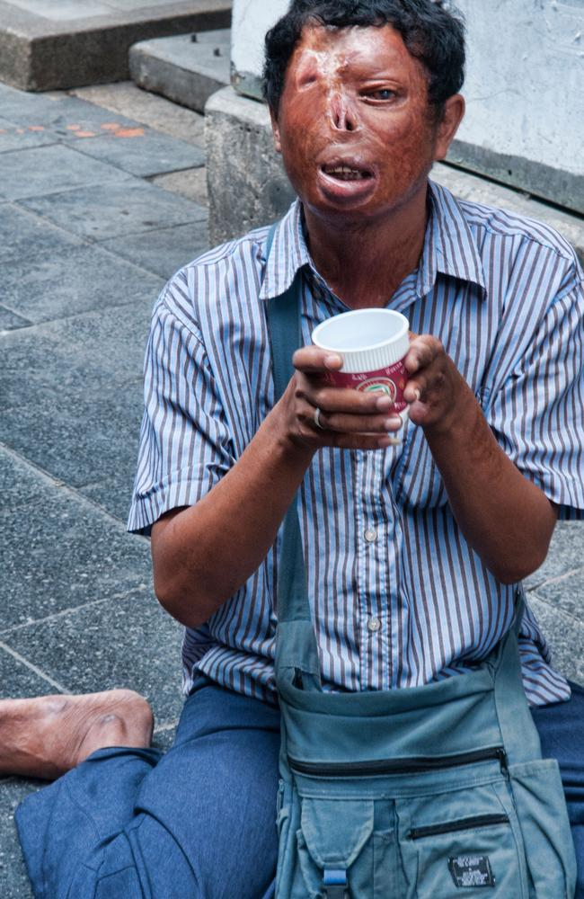 A man with severe facial distortions from leprosy begs for money on a Bangkok street in Thailand. Picture: Alamy.