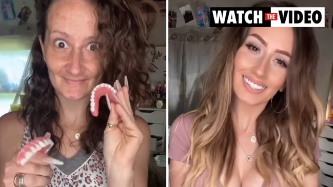 Toothless mum's jaw-dropping transformation