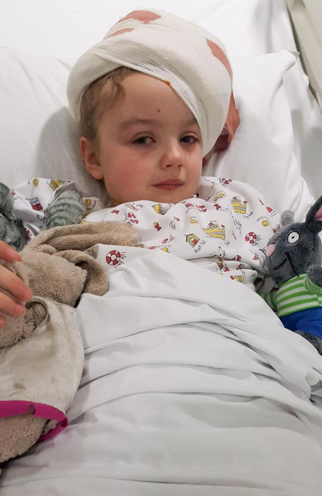 Megan underwent surgery to remove the tumour. Picture: Caters News