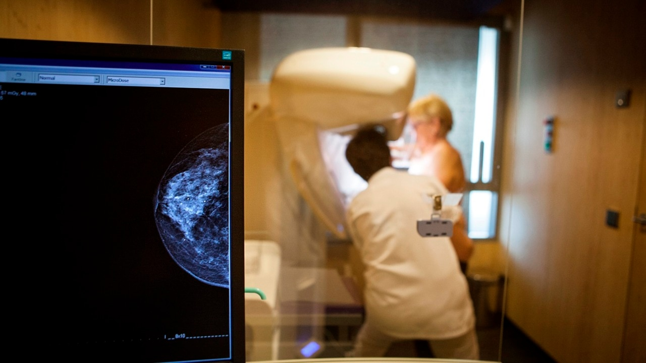 Clinical trials to detect breast cancer through new blood test