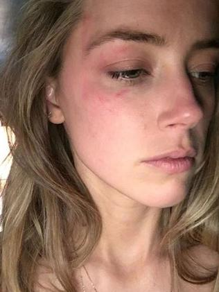 Amber Heard shared this image of her bruised after alleged abuse by Johnny Depp. Picture: Snapchat