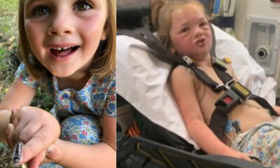 Mum's warning after four-year-old has allergic reaction
