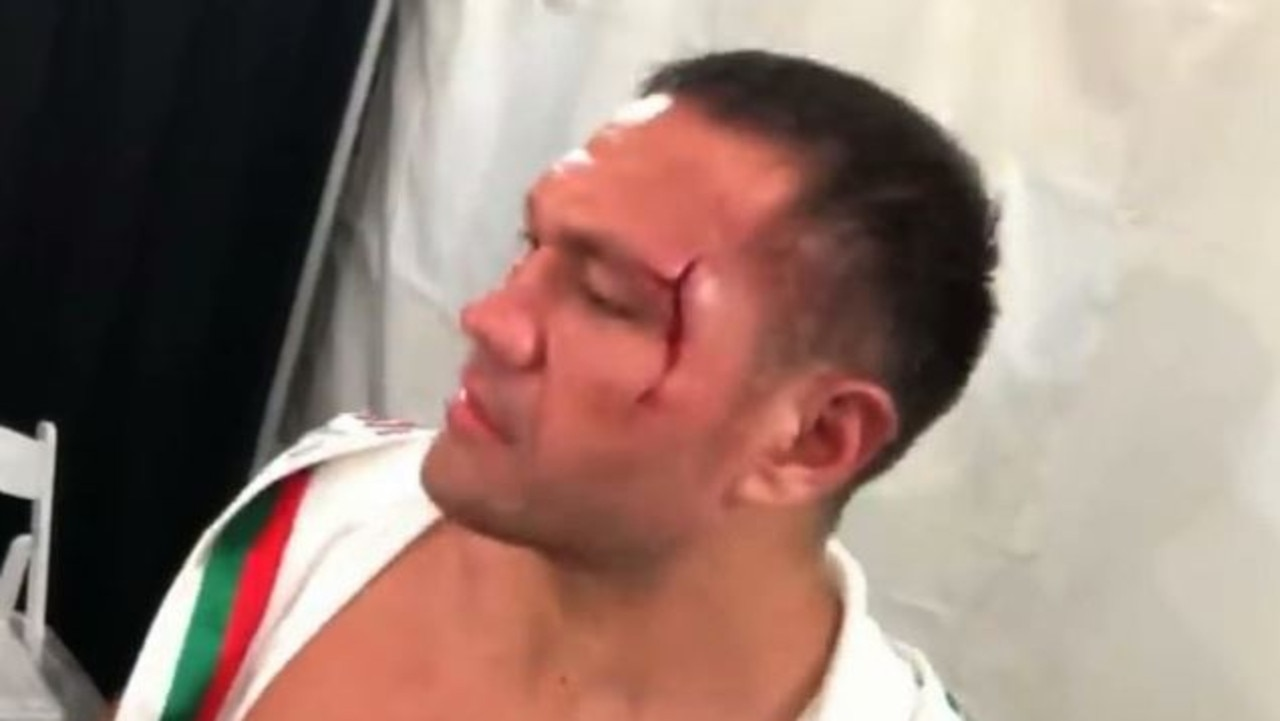 Kubrat Pulev suspended for reporter kiss.