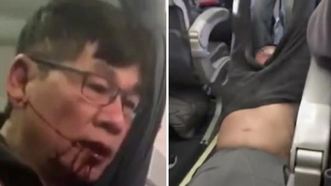 """Dr David Dao was controversially dragged off a United Airlines flight. Picture: AP                         <a capiid=""""27f091c852262ee83b9daa04528ab42d"""" class=""""capi-video"""">United plane catches fire on landing</a>"""