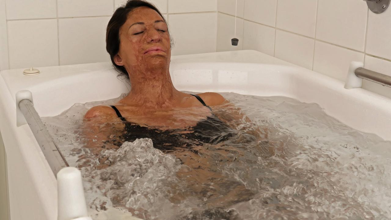 Turia visited the Avene Hydrotherapy Centre in France in 2018 and will be making a return trip this year.