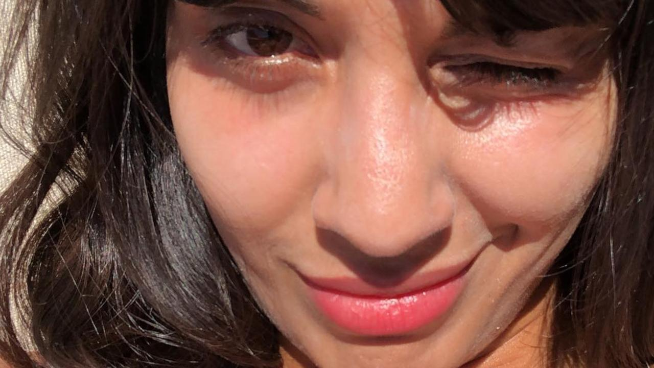 Jameela Jamil wants people to embrace their stretch marks.