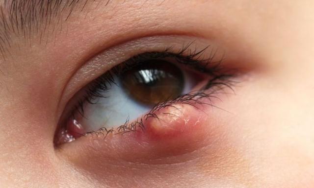 common eye illnesses in kids