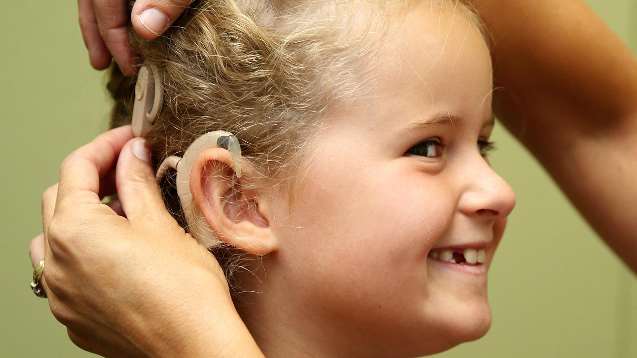 Cochlear implant recipient Lily King. Picture: Alison Wynd
