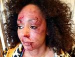 Mel appears beaten, bloody and bruised in the shocking domestic violence video. Picture: Women's Aid