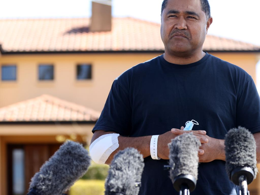 Toutai Kefu still bearing bandages from injuries sustained during the alleged home invasion. Picture: Tara Croser.