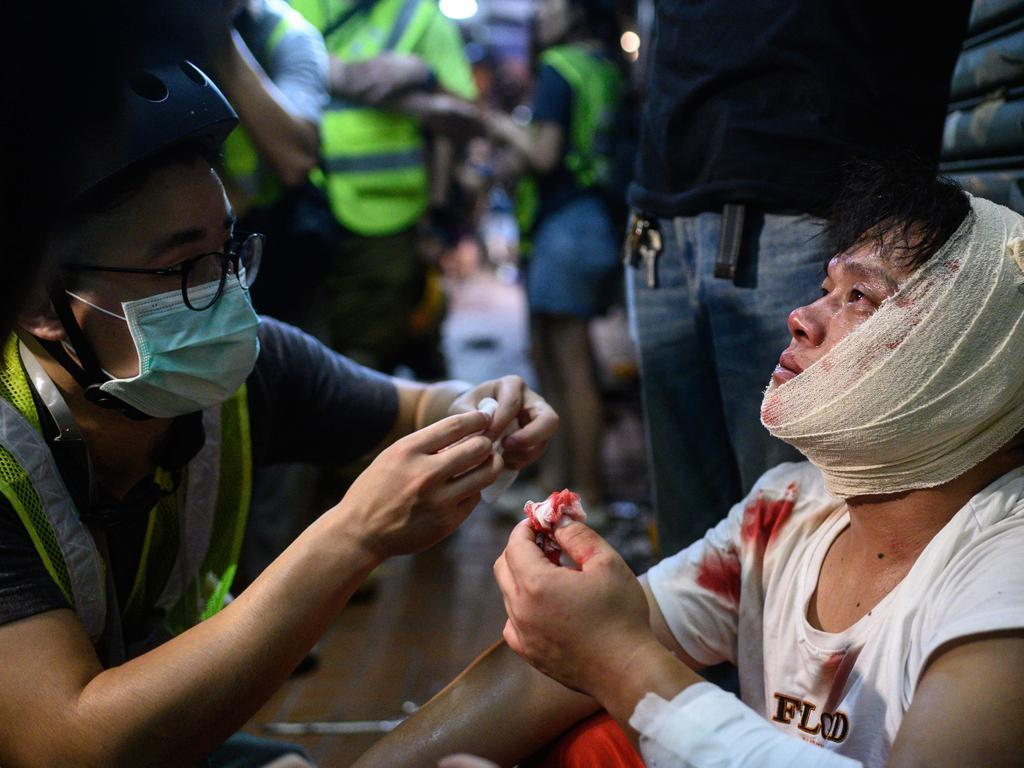 An injured man is attended to as he sits on the street after a clash during a protest in Tsuen Wan district of Hong Kong. Picture: AFP