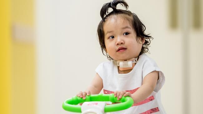 Eva, 2, has had a tracheostomy. Picture: JAKE NOWAKOWSI