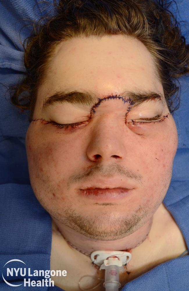 Cameron's face transplant was completed during a 25-hour reconstructive surgery. Picture: NYU Langone Health