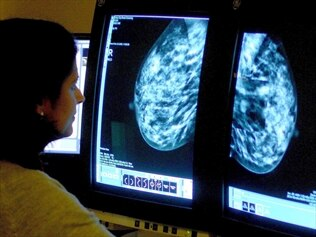 A study has tied a new gene to a very high risk of developing breast cancer.