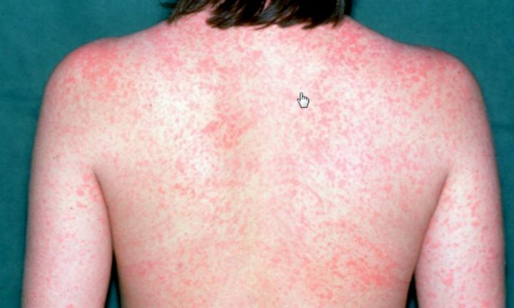 What you need to know about measles