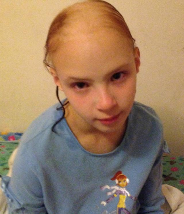 PIC BY MIRIAM LAWRENCE / CATERS NEWS - (PICTURED: Eliana Lawrence when her hair had fallen out) -An outraged mum has claimed her daughters beautiful red hair fell out after using a celebrity endorsed shampoo. Eliana Lawrence, 11, from Denver, Colorado, USA, was left completely bald just before turning 10-years-old after reportedly using Wen Cleansing Condition - endorsed by Brooke Sheilds - to wash her hair three times. Terrified she had cancer, the little girl begged her mum for a wig as a present for her 10th birthday and she was bullied so much she had to be home-schooled. Two years later and only some of Elianas hair has grown back covering roughly 70% of her scalp. After over 20,000 similar complaints were made, the Food and Drug Admin (FDA) issued a safety warning for Wen products.However, much to the dismay of Elianas mum, Miriam, the FDA lack the authority to recall the product altogether. Now Eliana has become the face of cosmetic safety reform. SEE CATERS COPY