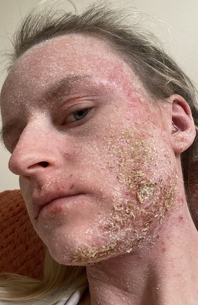 Megan's face became 'one big scab' when she stopped using topical steroid creams. Picture: Media Drum World/australscope