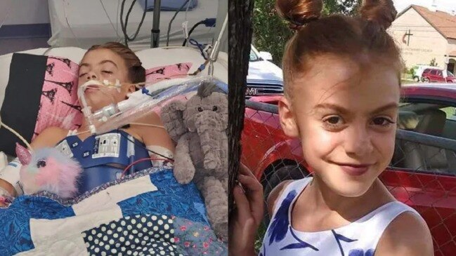 Girl fighting for life in coma after contracting brain-eating parasite while swimming (CBS 11)