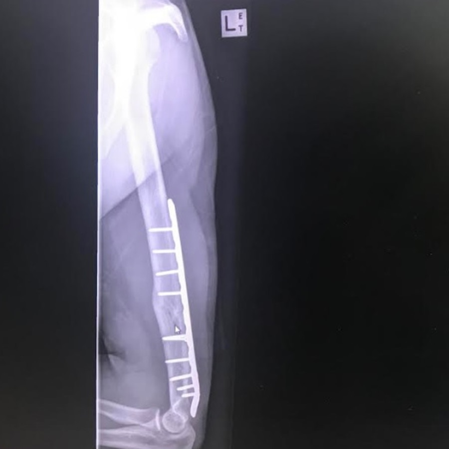 He now has a titanium rod permanently in his arm. Picture: Jacob Pearce