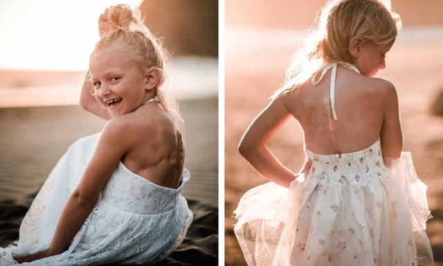 Michelle wants Claire to see her scars as beautiful reminders of her fight. Source: Dionne Kraus Photography