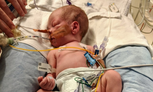 Mum endures traumatic delivery of twins