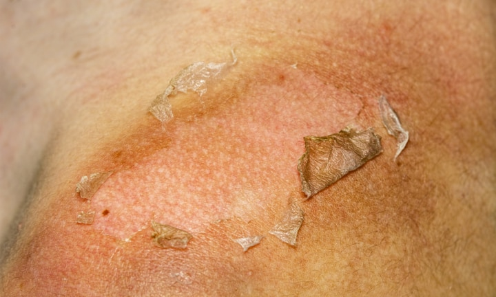 Sunburned peeling on back body a girl
