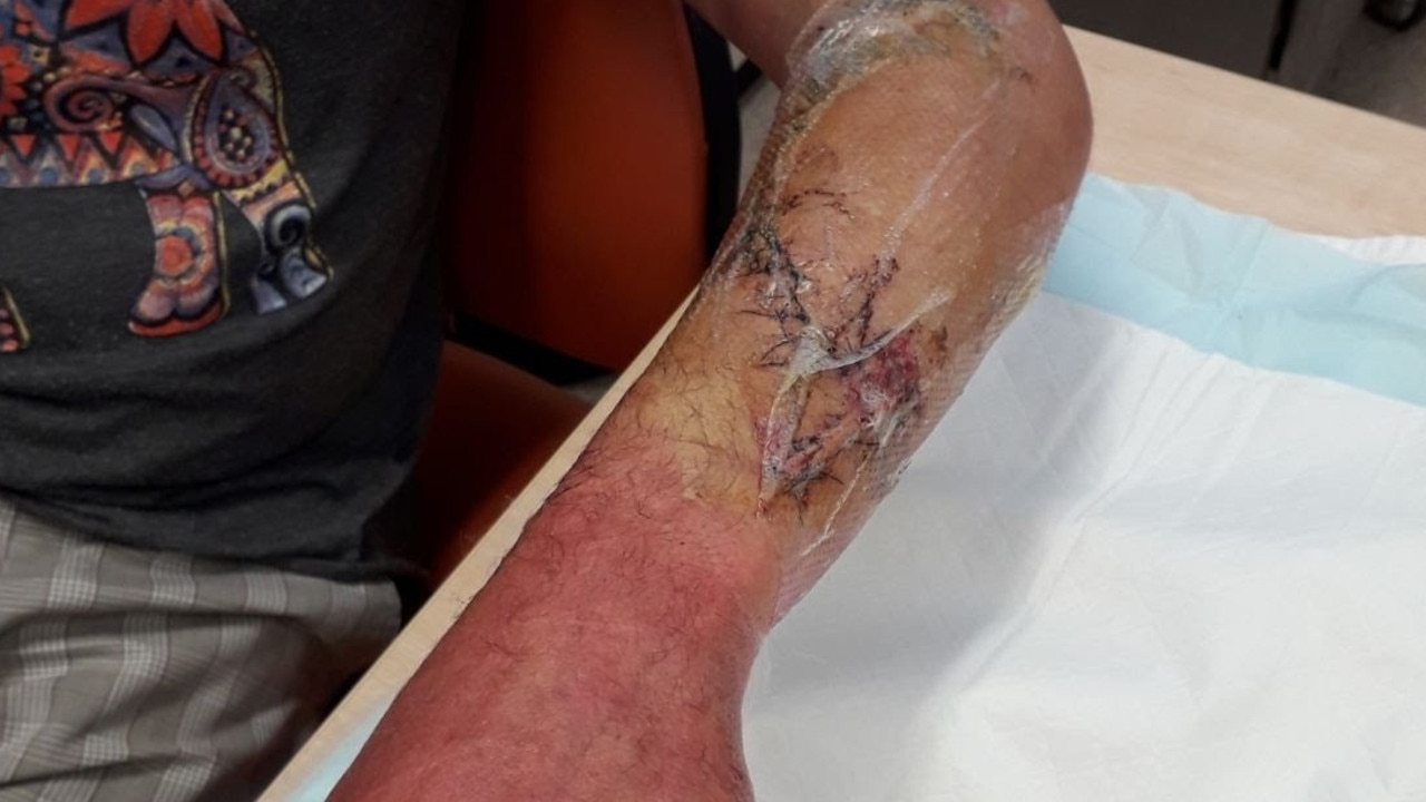 Mathew Vickers was bitten by a grey reef shark and received more than 90 stitches. Picture: GoFundMe