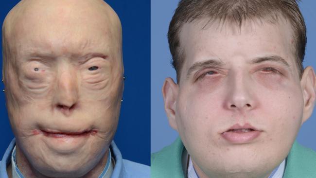 Face transplant for firefighter